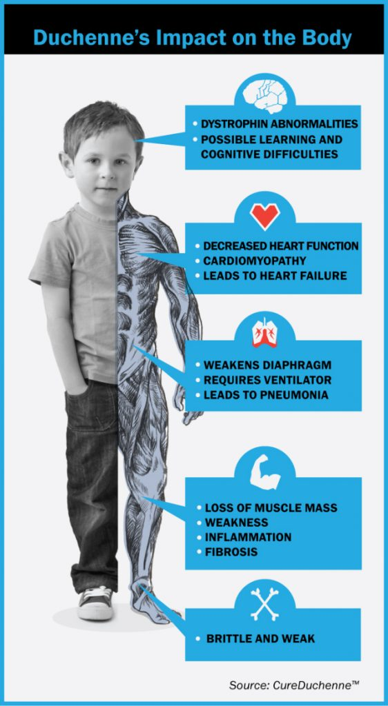 Duchenne Impact on Body