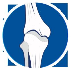 Steroids Bone Demineralization